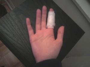 My war wound